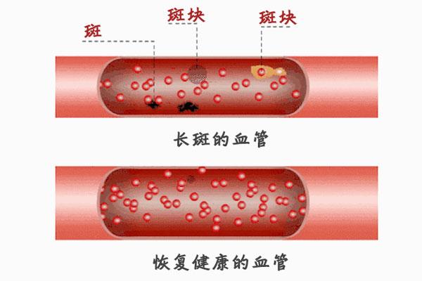 血管里的斑块 斑块能溶解
