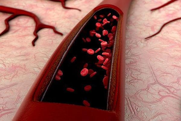 血栓 世界血栓日 引起血栓的原因